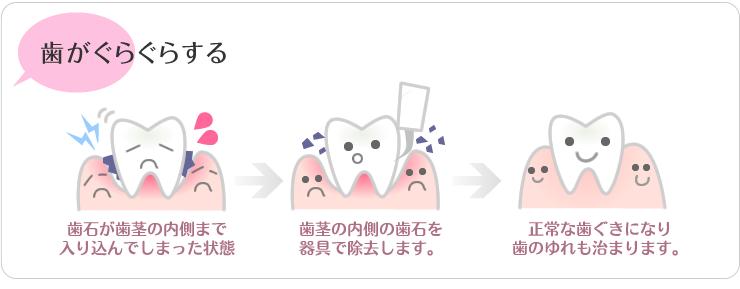 歯がグラグラする(歯石によるゆれ)歯石が歯茎の内側まで入り込んでしまった状態。歯茎の内側の歯石を器具で除去します。正常な歯茎になり歯の揺れもおさまります。