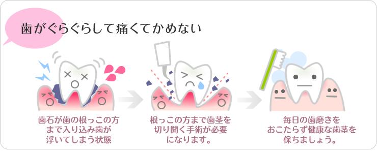 歯がぐらぐらして痛くて噛めない(歯石・歯周病)