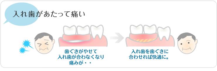 入れ歯があたって痛い歯茎がやせて入れ歯が合わなくなり、痛みが。入れ歯を歯茎に合わせれば快適に。