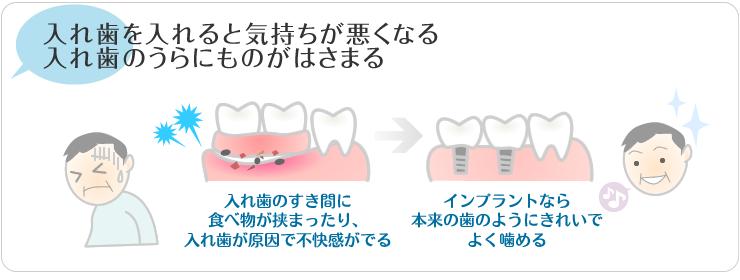 入れ歯を入れrつ尾気持ち悪くなる。入れ歯の裏にものがはさまる。
