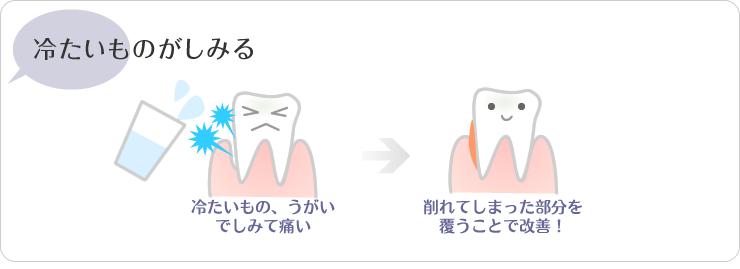 川越の歯科本川越歯科の冷たいもの、うがいでしみて痛い場合は削れてしまった部分を覆うことで改善!