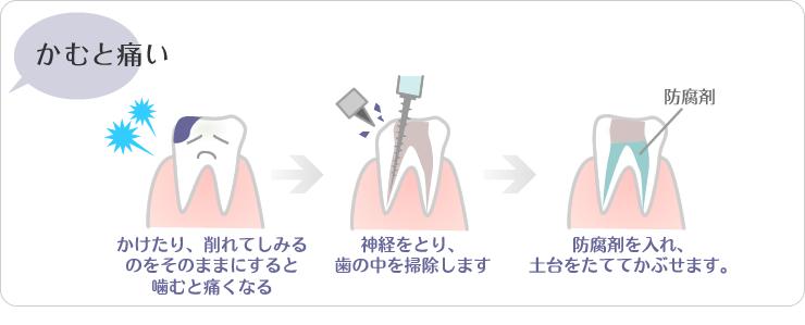 (1)かけたり、削れてしみるのをそのままにすると噛むと痛くなる。(2)神経をとり、歯の中を掃除します(3)防腐剤をいれ、土台をたててかぶせます。