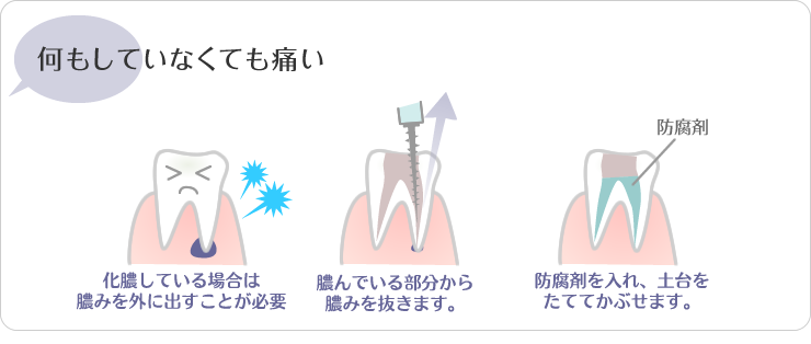 川越の歯科・本川越歯科の何もしていなくても歯が痛い。化膿している場合は膿みを外に出す事が必要。膿んでいる部分から膿みを抜きます。防腐剤をいれ、土台をたててかぶせます。