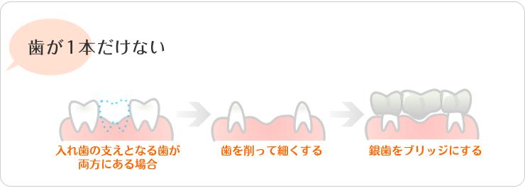 歯が一本だけない。入れ歯の支えとなる歯が、両方にある場合。歯を削って細くする。銀歯をブリッジにする。