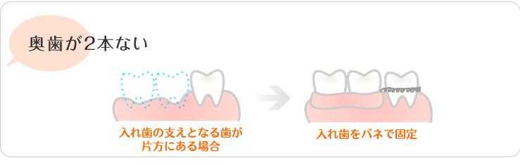 奥歯が2本ない。入れ歯の支えとなる歯が片方にある場合。入れ歯をバネで固定。