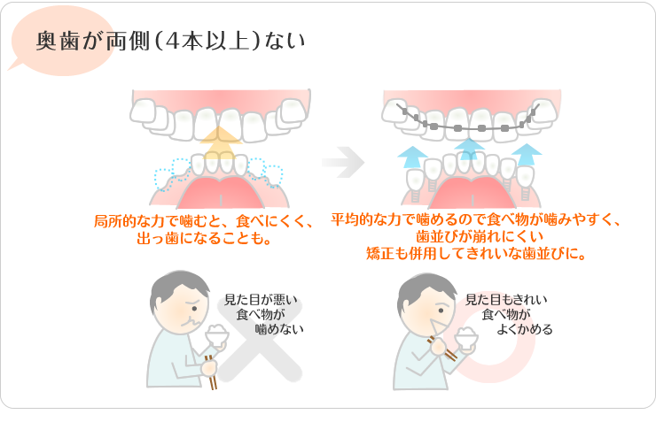 奥歯が両側4本以上ない。局所的な力で噛むと食べにくく、出っ歯になる事も。平均的な力で 噛めるので食べ物が噛みやすくは並びが区連れに食い。矯正も併用してきれいな歯並びに。