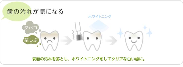 歯の汚れが気になる。表面の汚れをお年、ホワイトニングをしてクリアな白い歯に。