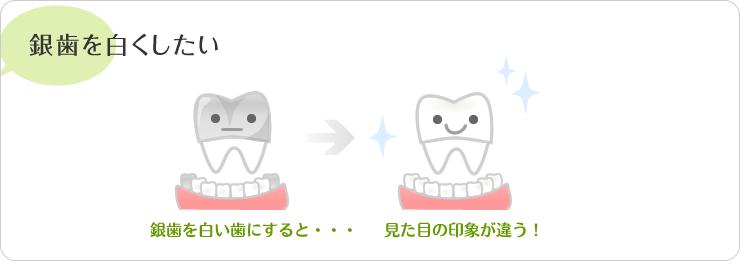 銀歯を白くしたい・銀歯を白い歯にすると、見た目の印象が違う