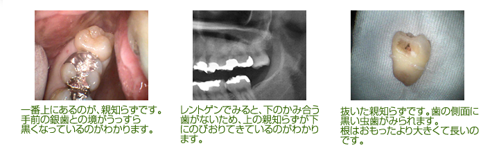 一番上にあるのが、親知らずです。 手前の銀歯との境がうっすら 黒くなっているのがわかります。レントゲンでみると、下のかみ合う歯がないため、上の親知らずが下にのびおりてきているのがわかります。 抜いた親知らずです。歯の側面に黒い虫歯がみられます。 根はおもったより大きくて長いのです。