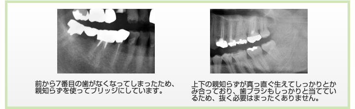 前から7番目の歯がなくなってしまったため、 親知らずを使ってブリッジにしています。上下の親知らずが真っ直ぐ生えてしっかりとかみ合っており、歯ブラシもしっかりと当てているため、抜く必要はまったくありません。